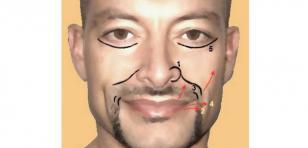 Las líneas de expresión de tu rostro dicen esto de ti