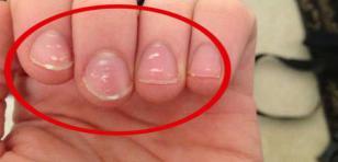¿Qué significan las manchas blancas en las uñas?