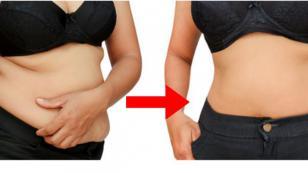 ¡Prevén la obesidad y el sobrepeso con estas recomendaciones!